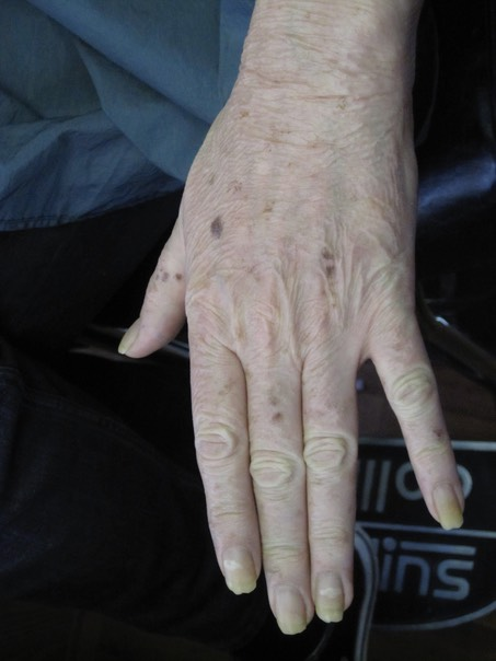 2. old ageed hand